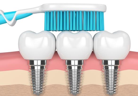 دراسة جدوى مشروع  مصنع زراعة الاسنان والمعقمات باستثمار 7,7 مليون دولار.